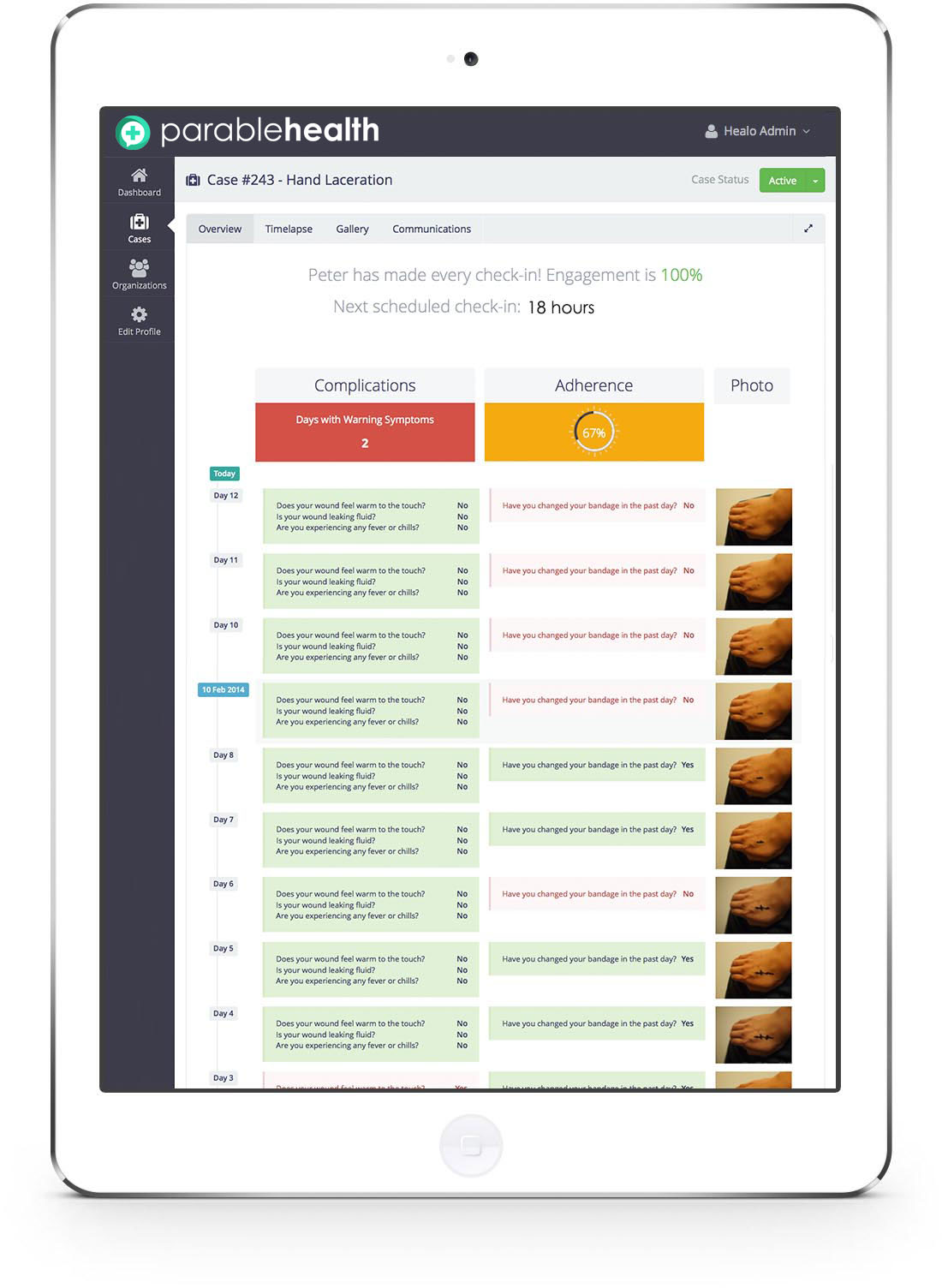 iPad clinician patient wound monitoring dashboard